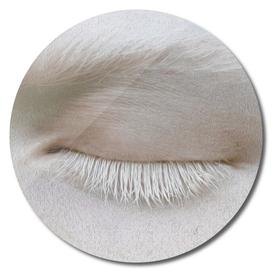 Albino eye.