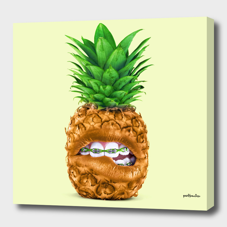 PINEAPPLE BRACES