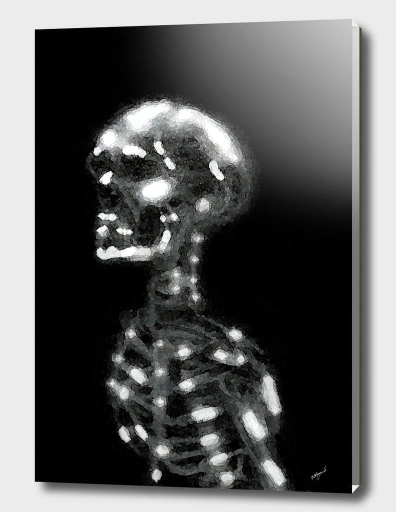 Skelital 1