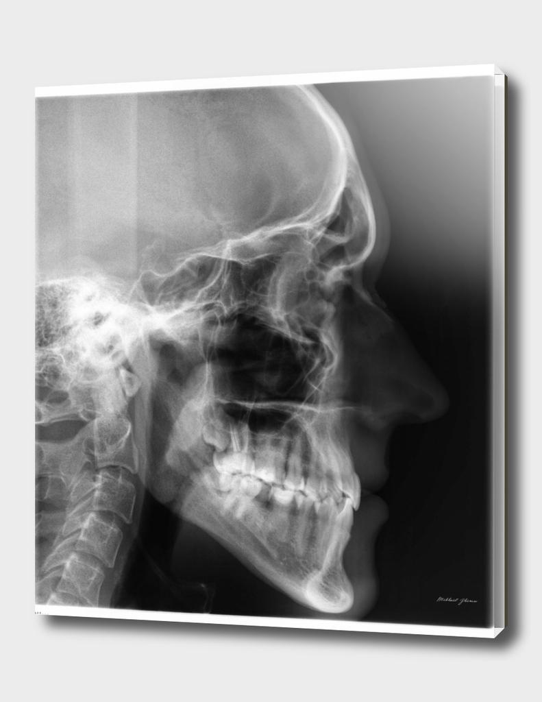 X-ray portrait