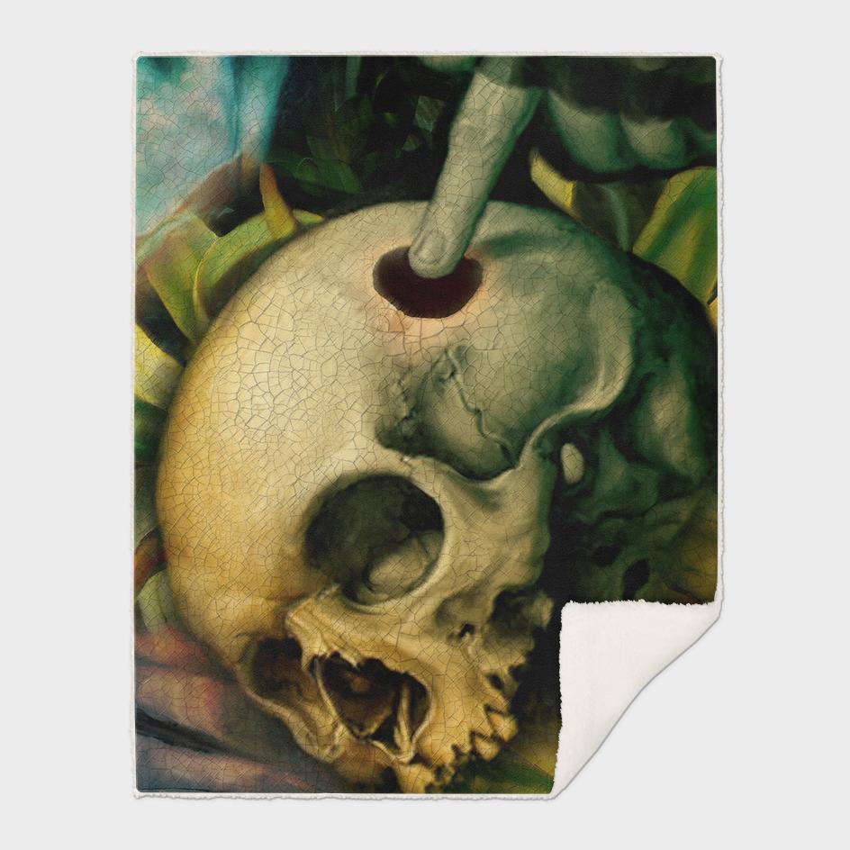 """""""Trepanation, please! (skull)"""""""